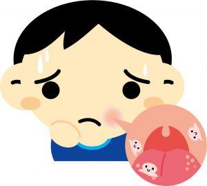 化学療法の副作用「口内炎」